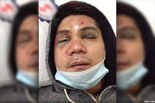 Questions Arise in Beating of Actor Vhong Navarro